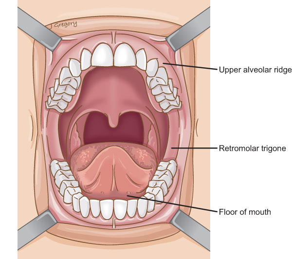 Anatomy Of Oromandibular Cancer Headandneckcancerguide