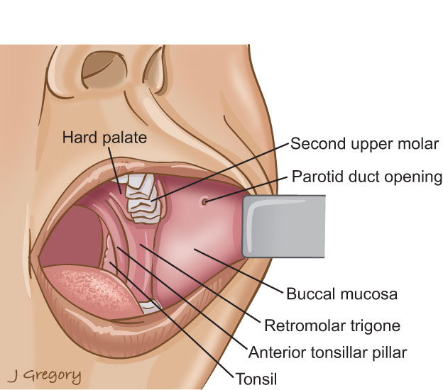 Anatomy of Buccal Cancer, Mouth Cancer: HeadandNeckCancerGuide.org