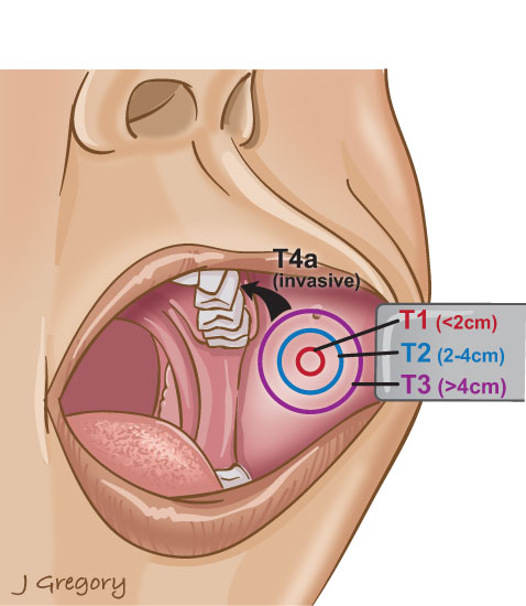 Buccal Cancer: Head and Neck Cancer Info for Teens