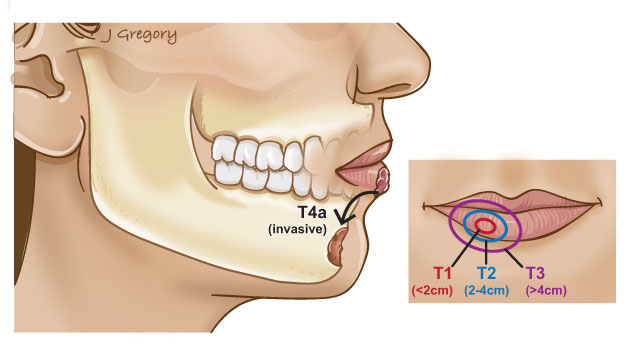 Stages of lip cancer oral cancer headandneckcancerguide n stage spread of cancer to the lymph nodes in the neck publicscrutiny Images