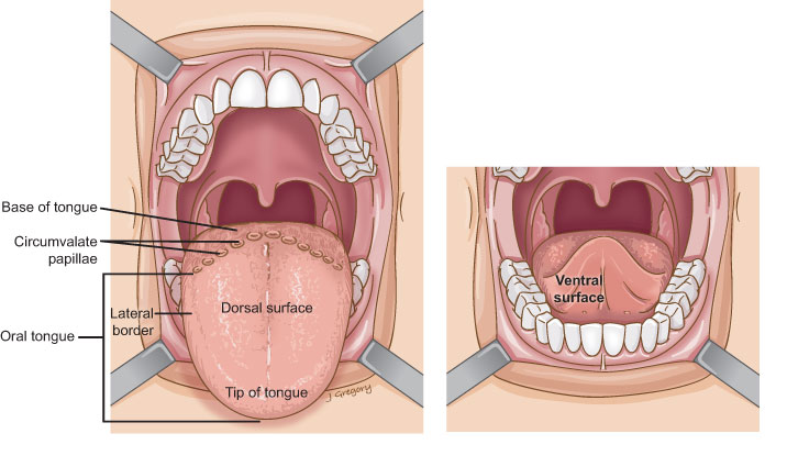 Anatomy Of Oral Tongue Cancer Headandneckcancerguide