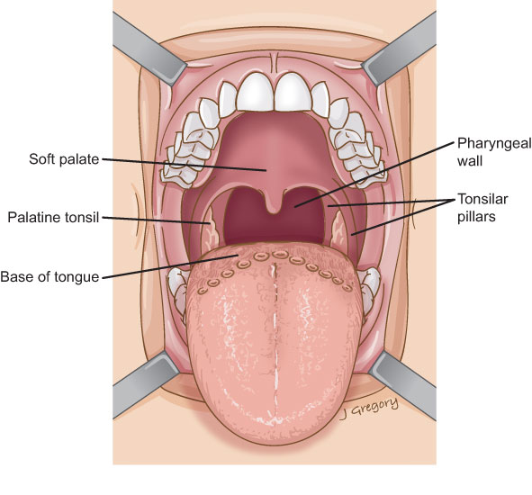 Oropharyngeal Cancer: Head and Neck Cancer Info for Teens