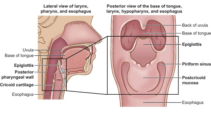 Hypopharyngeal Cancer Head And Neck Cancer Info For Teens