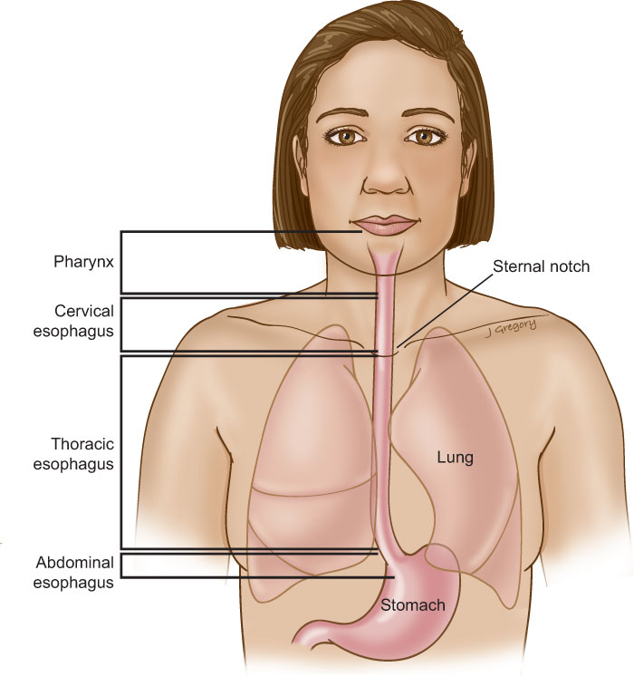 Anatomy of Cervical Esophageal Cancer: HeadandNeckCancerGuide.org