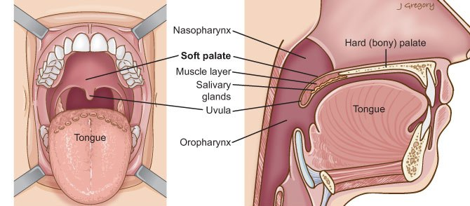 Soft Palate Cancer: Head and Neck Cancer Info for Teens