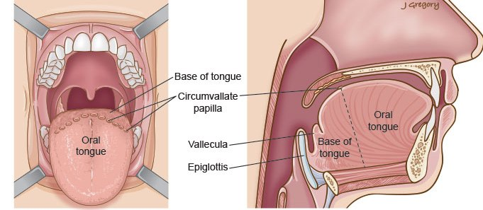 Tongue Base Cancer: Head and Neck Cancer Info for Teens