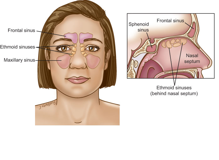 Sinus Cancer: Head and Neck Cancer Info for Teens