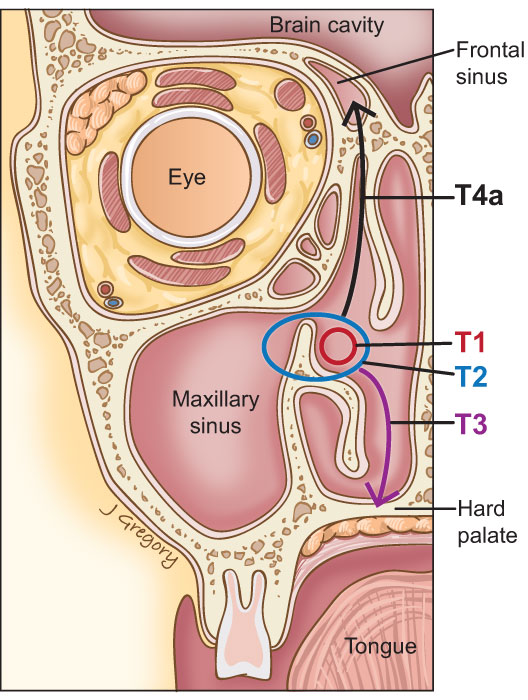 45_nasal_Tstages