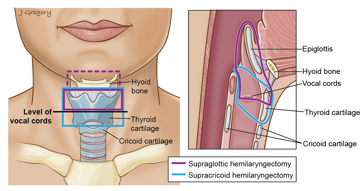 Laryngectomy Larynx Cancer Treatment