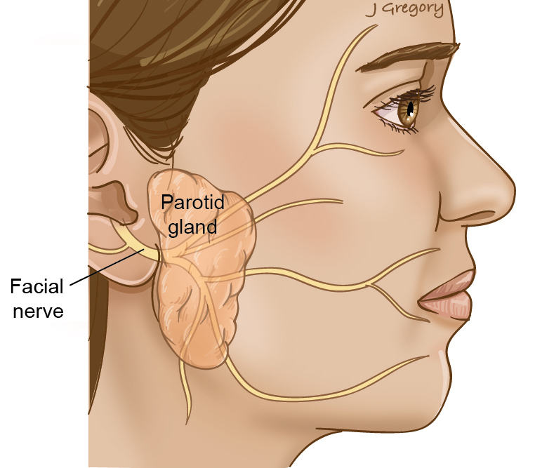 Parotidectomy: Parotid Cancer Treatment