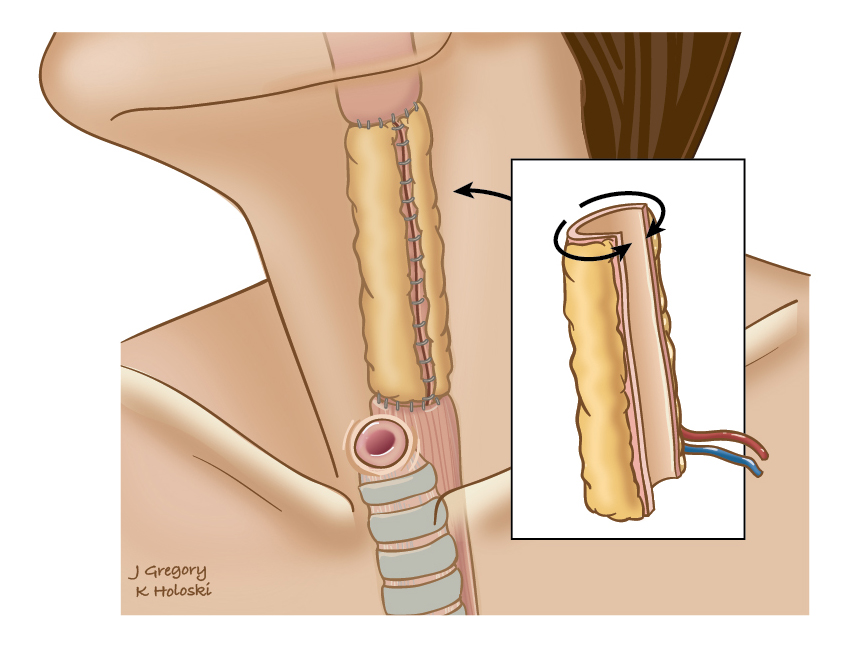 lymph_nodes_neck