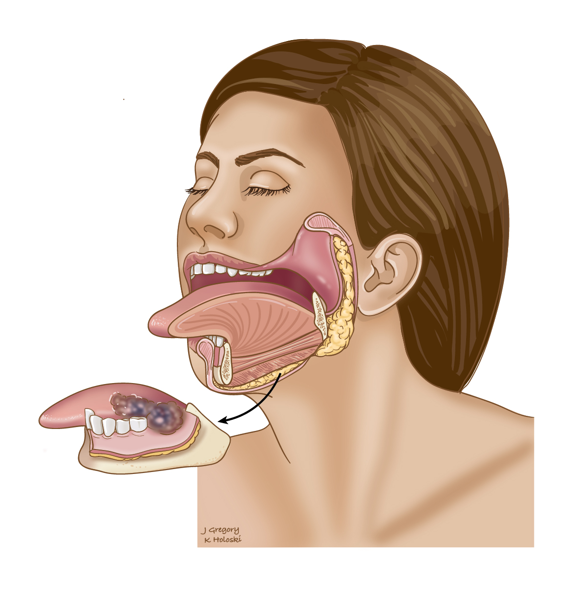 Mandibulectomy: Oral Cancer Treatment