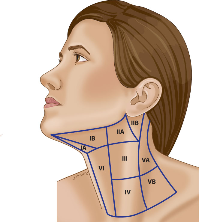 Anatomy of Metastatic Lymph Nodes: HeadandNeckCancerGuide.org
